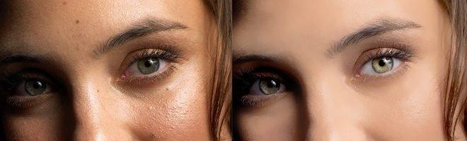 Убираем дефекты кожи с помощью Photoshop